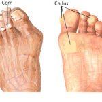 Corns-Calluses