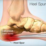 heel_spur